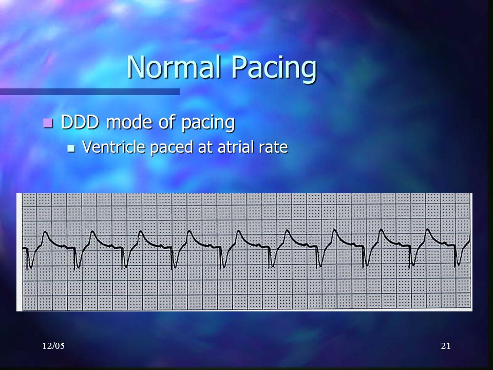 Normal Pacing DDD mode of pacing Ventricle paced at atrial rate 12/05
