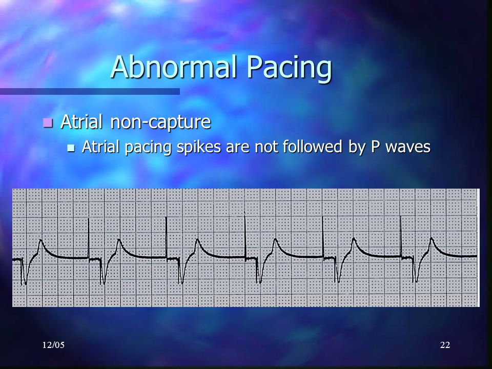 Abnormal Pacing Atrial non-capture