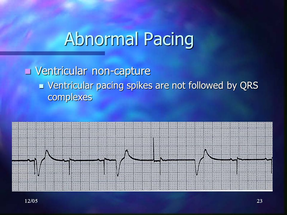 Abnormal Pacing Ventricular non-capture
