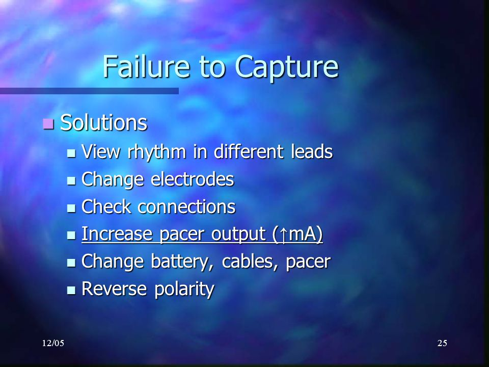 Failure to Capture Solutions View rhythm in different leads
