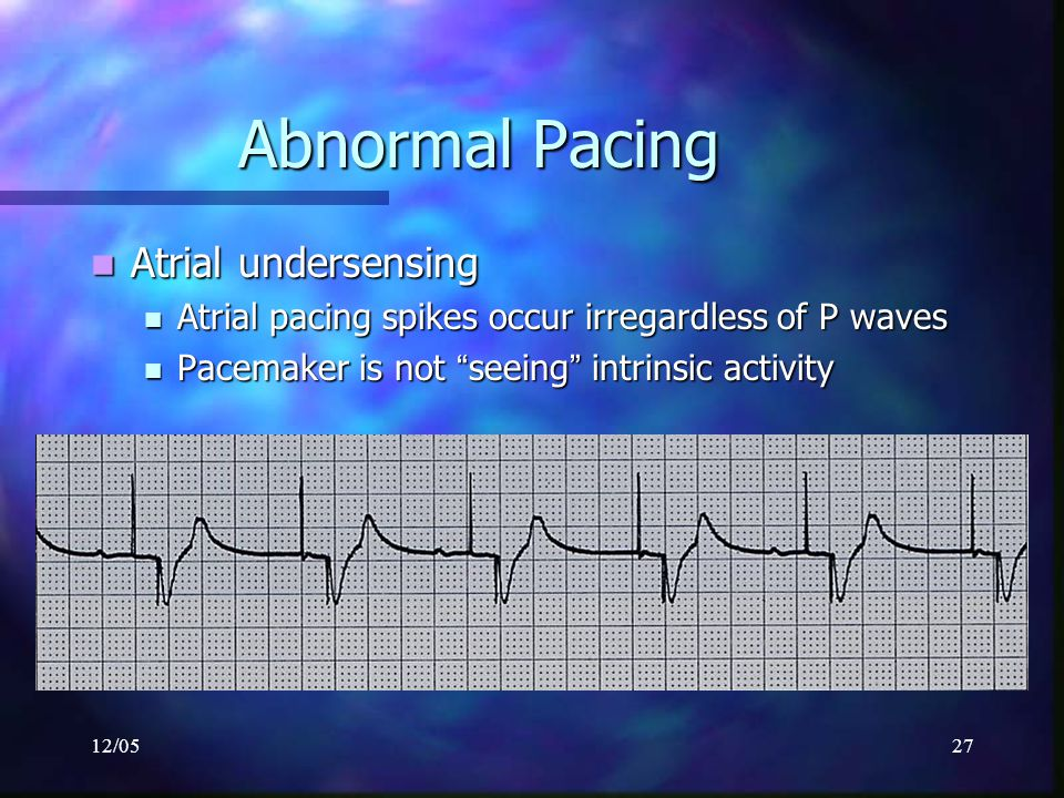 Abnormal Pacing Atrial undersensing