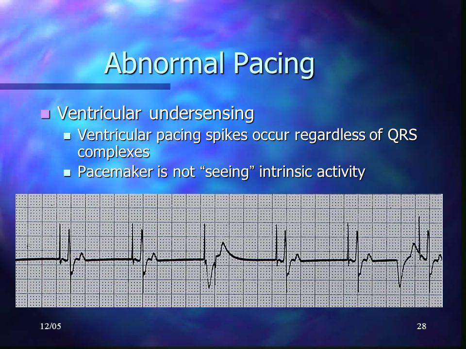 Abnormal Pacing Ventricular undersensing