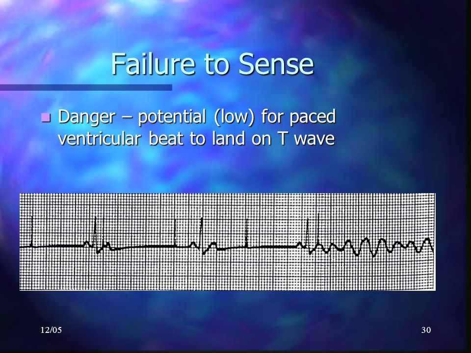 Failure to Sense Danger – potential (low) for paced ventricular beat to land on T wave 12/05