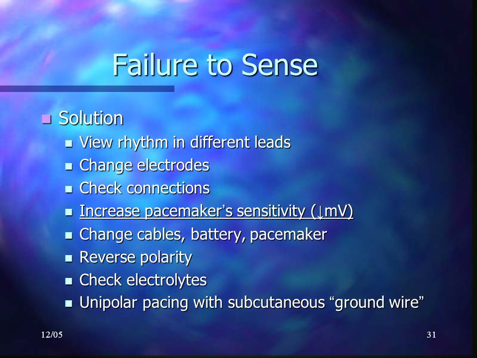 Failure to Sense Solution View rhythm in different leads