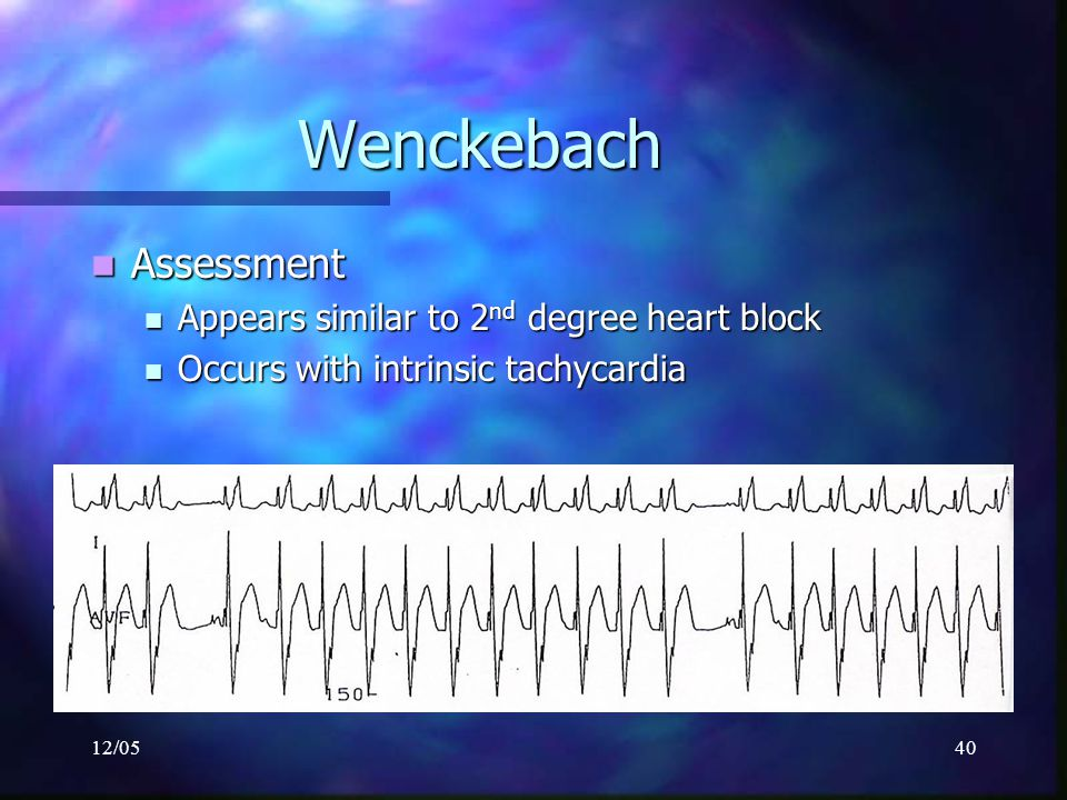 Wenckebach Assessment Appears similar to 2nd degree heart block