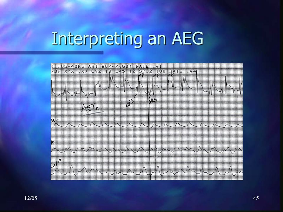 Interpreting an AEG 12/05