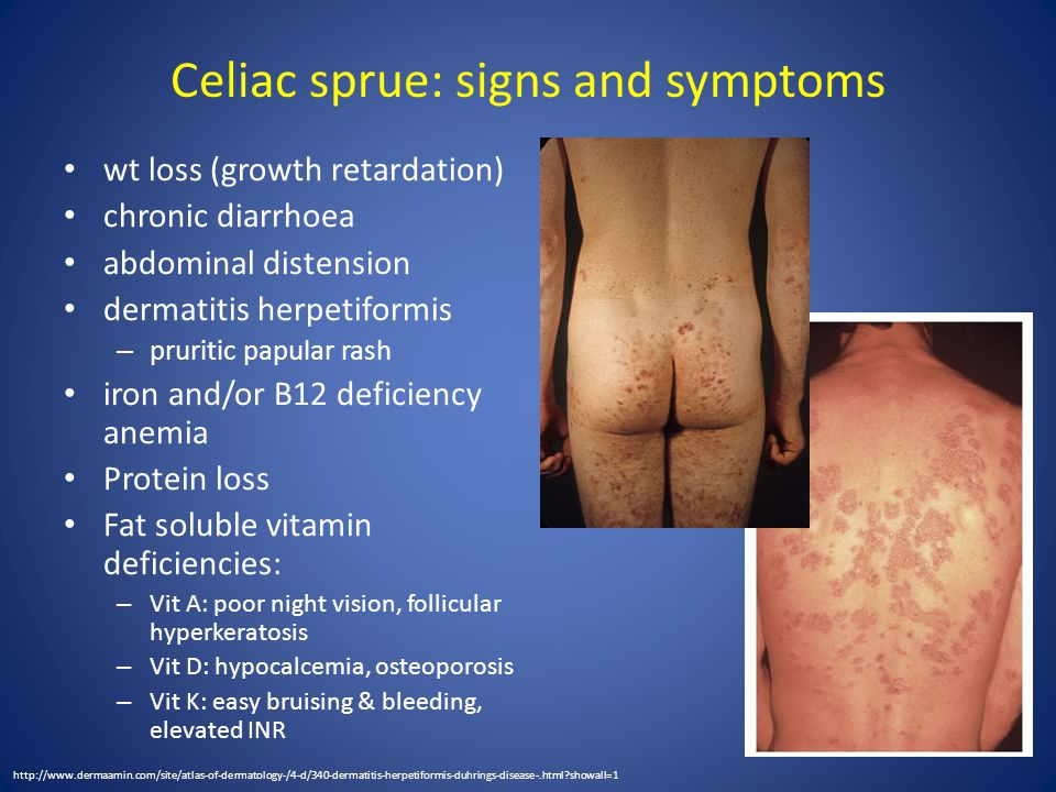 Celiac sprue: signs and symptoms