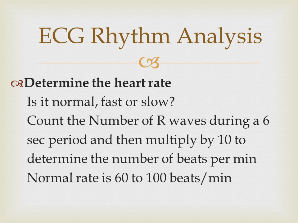 ECG Rhythm Analysis Determine the heart rate