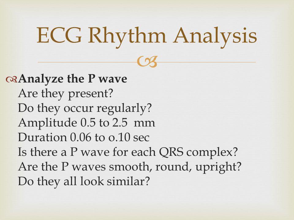 ECG Rhythm Analysis Analyze the P wave Are they present