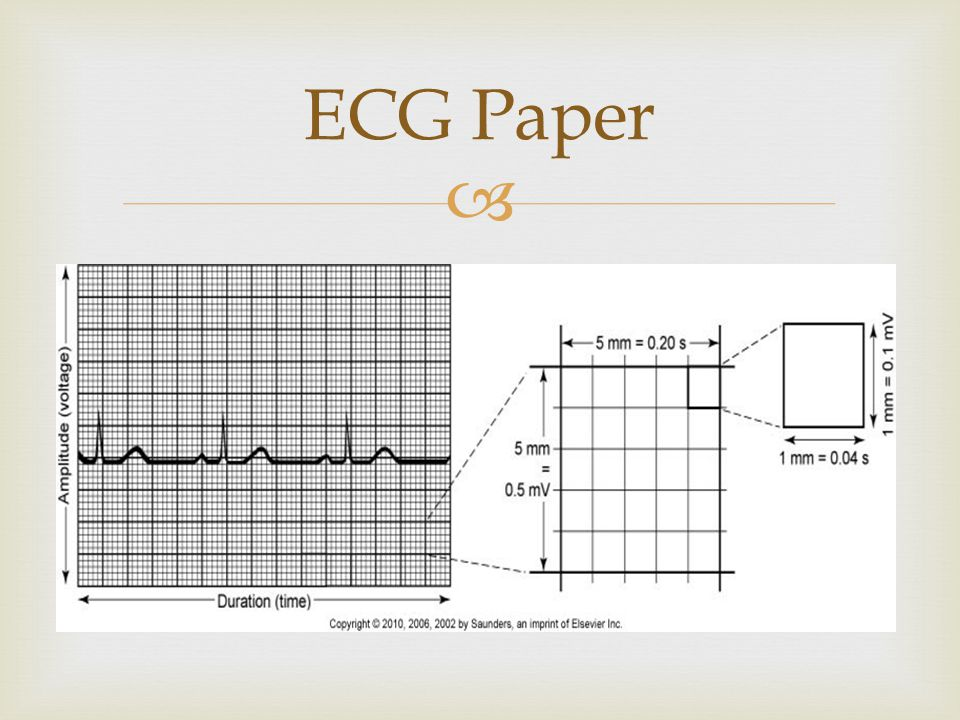ECG Paper Hash marks will be at the top of the paper above the graph