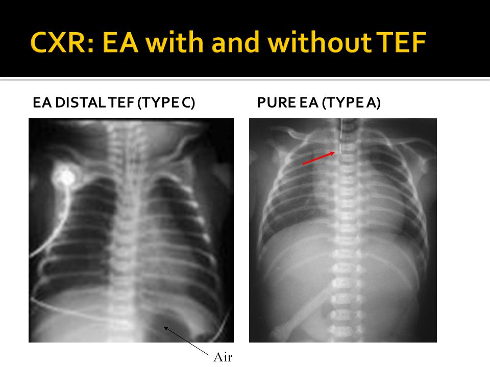 CXR: EA with and without TEF