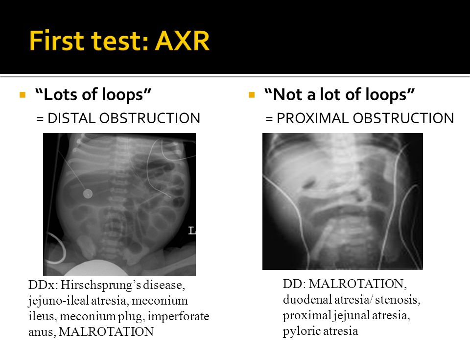 First test: AXR Lots of loops Not a lot of loops