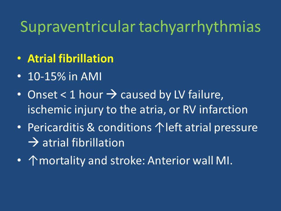 Supraventricular tachyarrhythmias