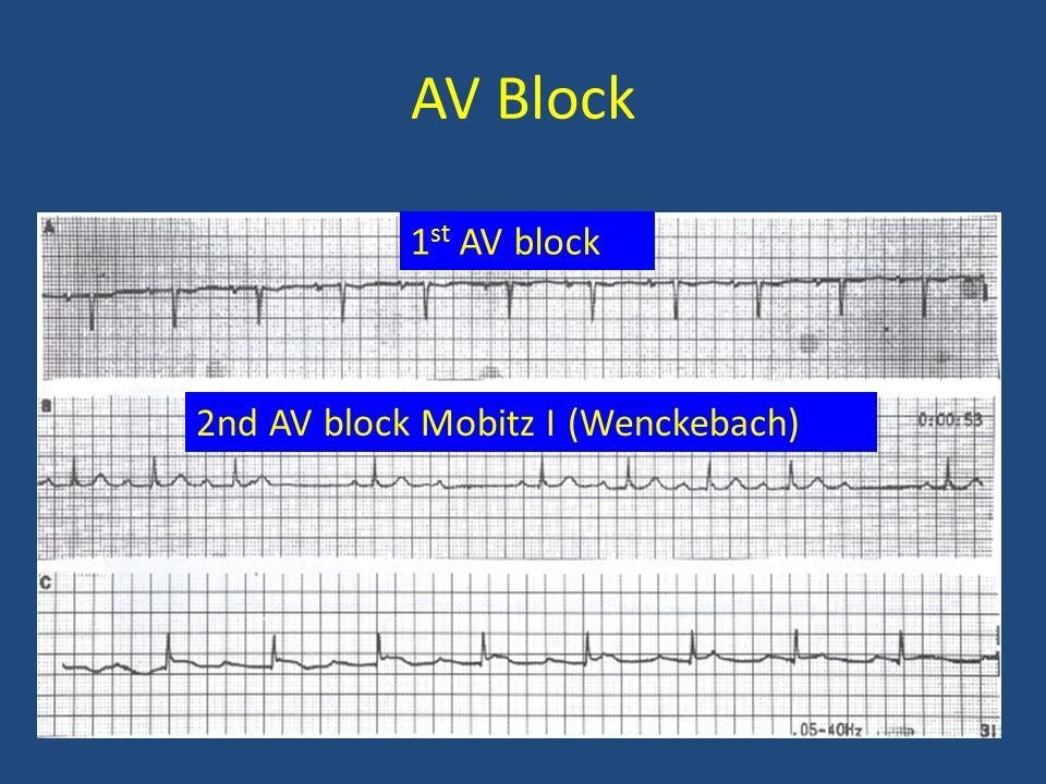 AV Block 1st AV block 2nd AV block Mobitz I (Wenckebach)