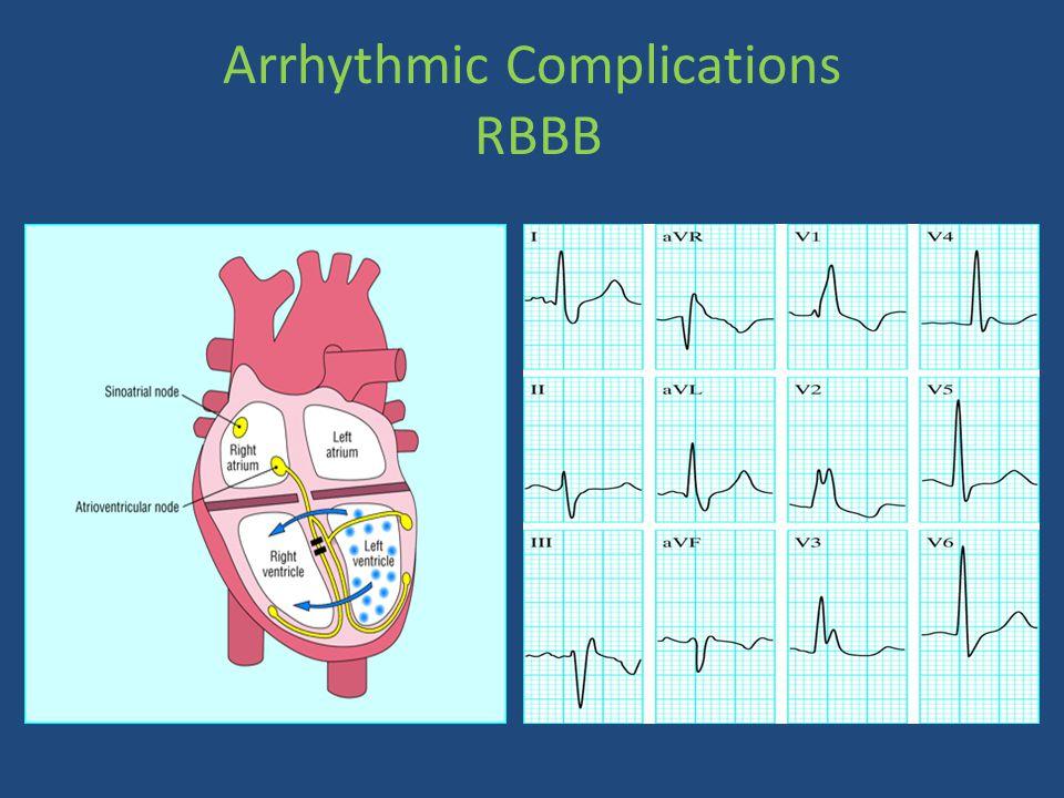 Arrhythmic Complications RBBB