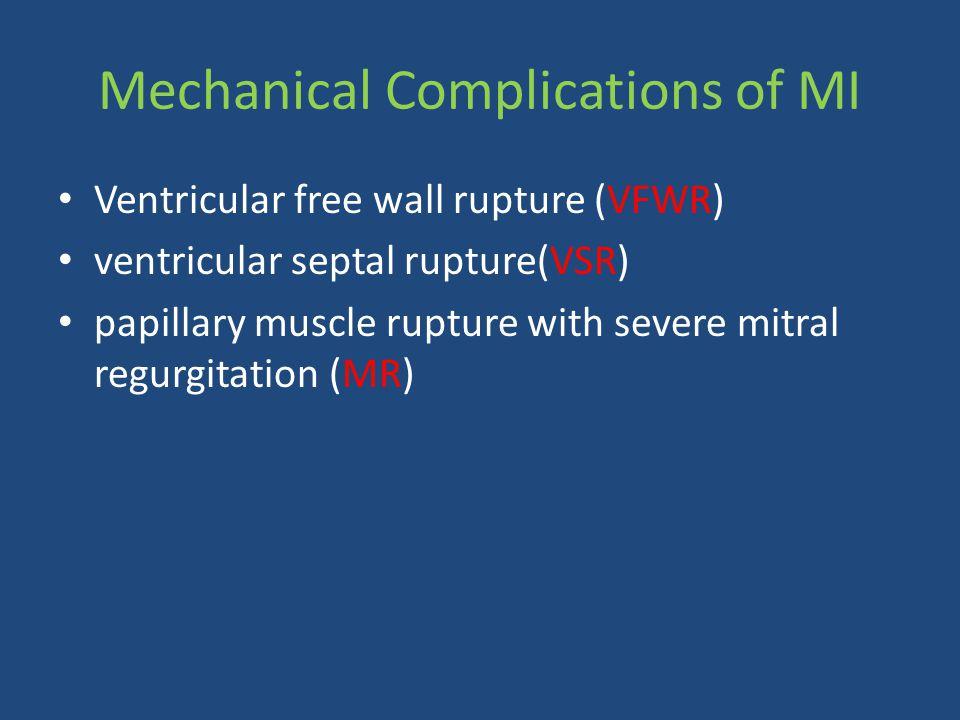Mechanical Complications of MI