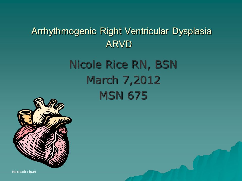 Arrhythmogenic Right Ventricular Dysplasia ARVD