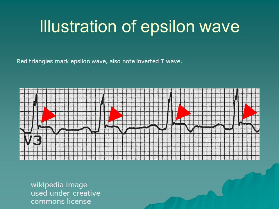 Illustration of epsilon wave