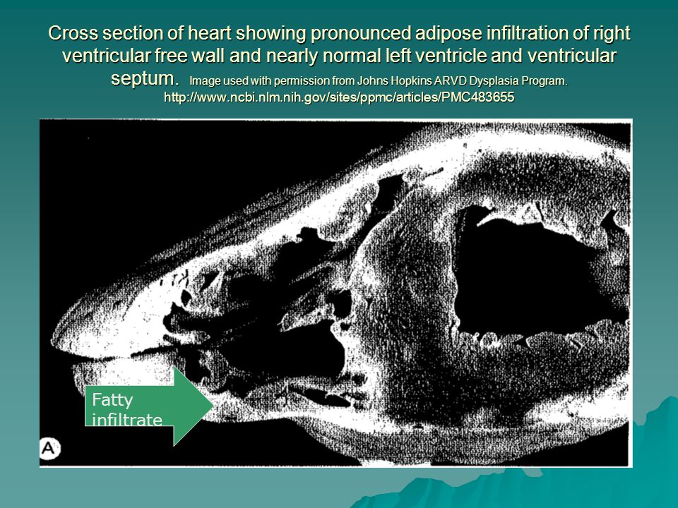 Cross section of heart showing pronounced adipose infiltration of right ventricular free wall and nearly normal left ventricle and ventricular septum. Image used with permission from Johns Hopkins ARVD Dysplasia Program. http://www.ncbi.nlm.nih.gov/sites/ppmc/articles/PMC483655