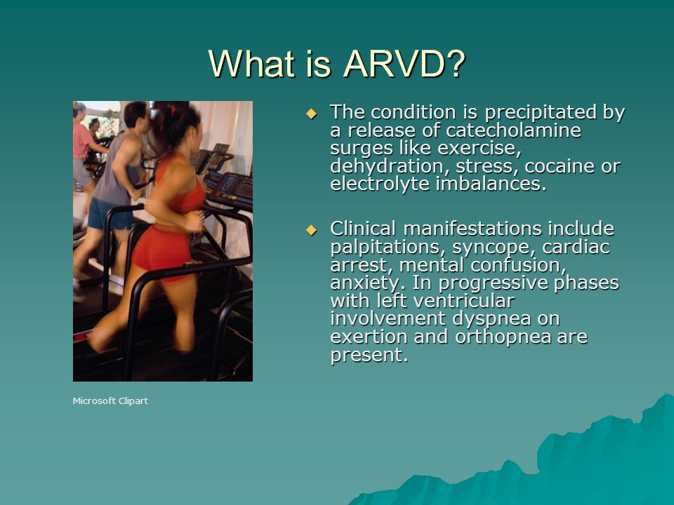 What is ARVD
