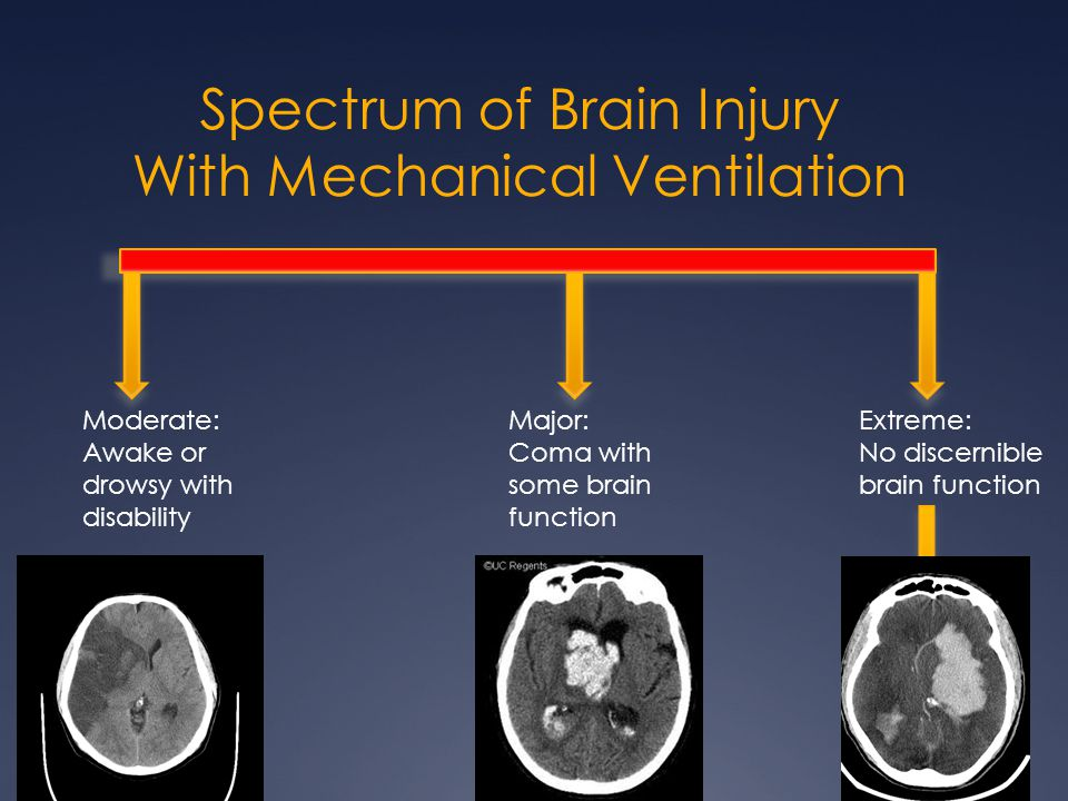 Spectrum of Brain Injury With Mechanical Ventilation