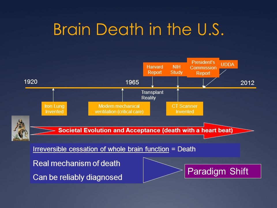 Brain Death in the U.S. Paradigm Shift Real mechanism of death