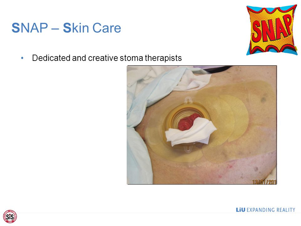 SNAP – Skin Care Dedicated and creative stoma therapists