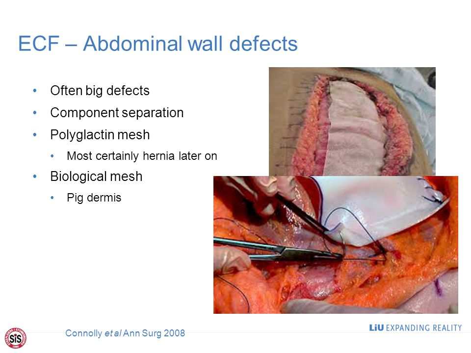 ECF – Abdominal wall defects