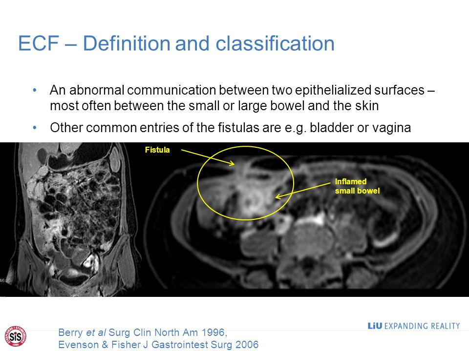 ECF – Definition and classification