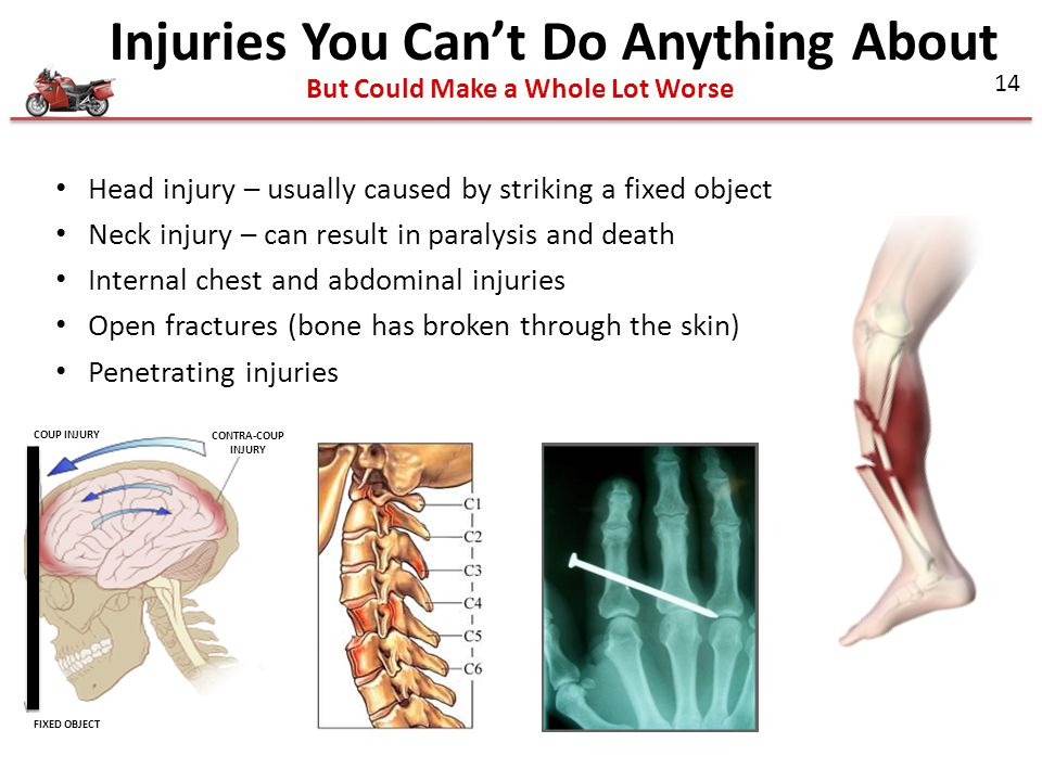 Injuries You Can't Do Anything About But Could Make a Whole Lot Worse