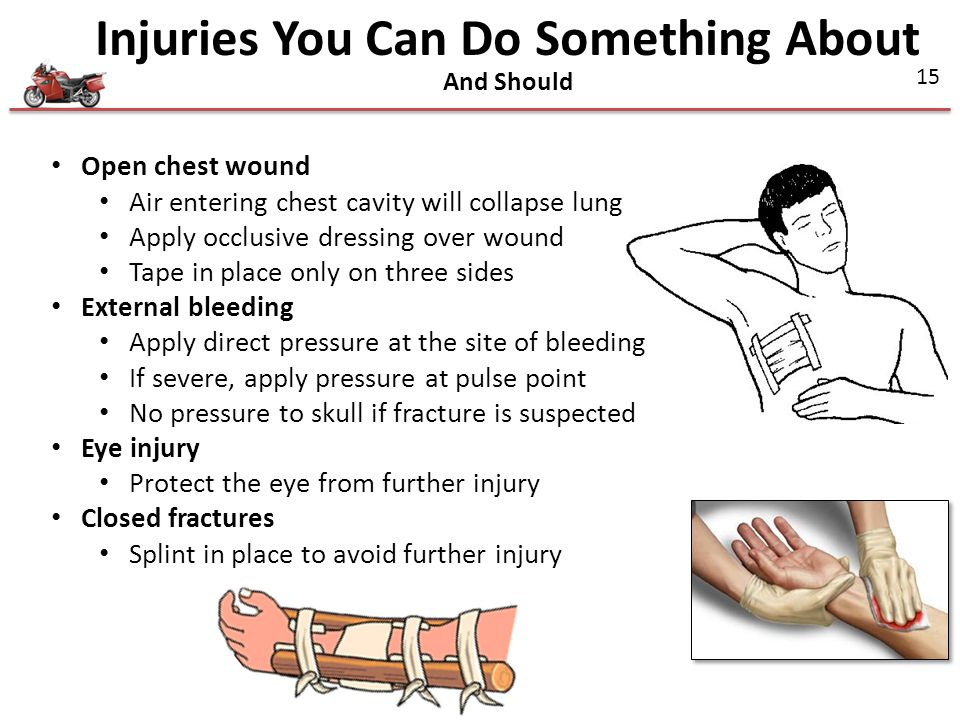 Injuries You Can Do Something About