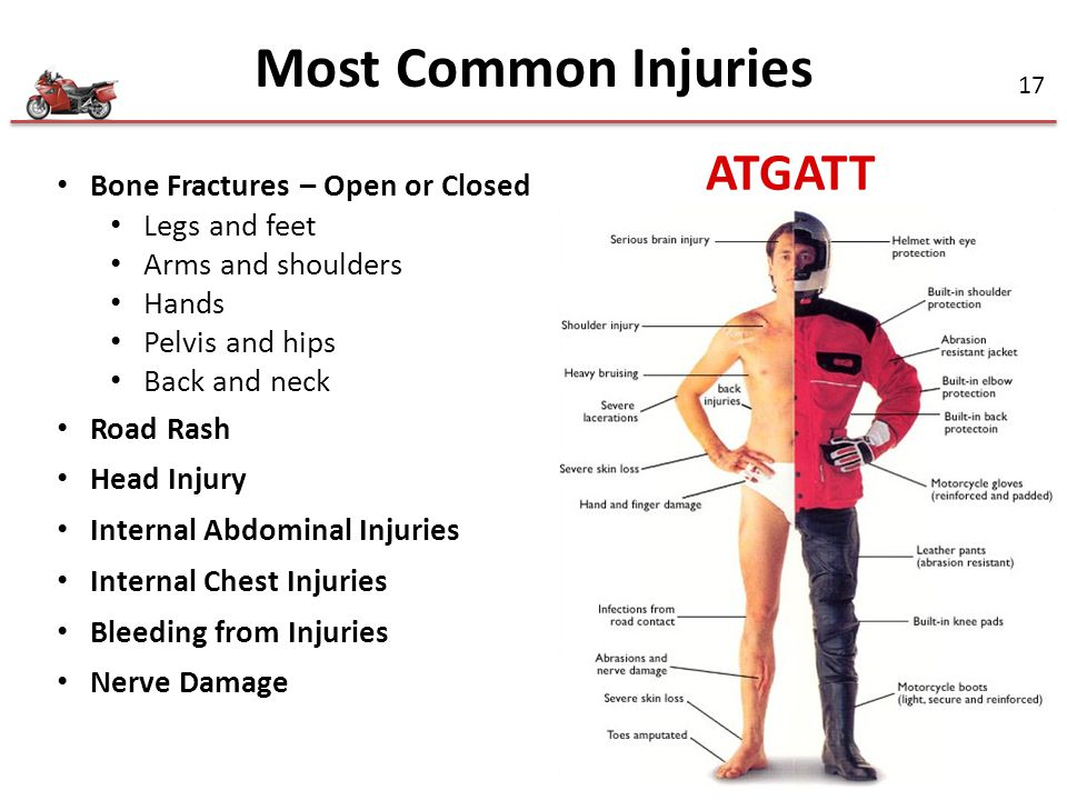 Most Common Injuries ATGATT Bone Fractures – Open or Closed