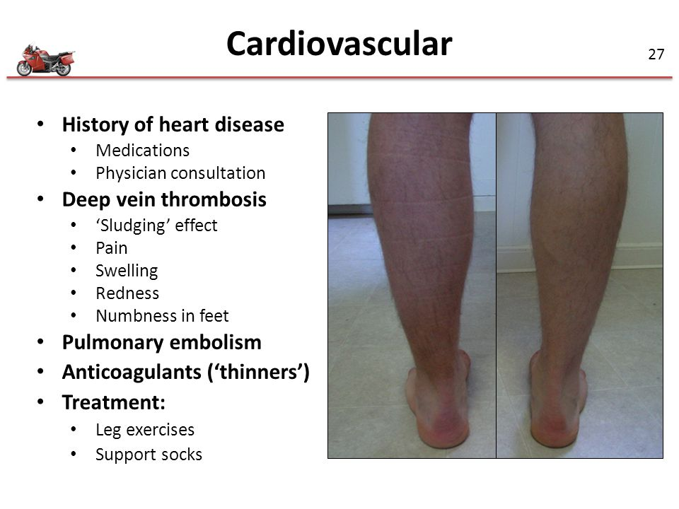 Cardiovascular History of heart disease Deep vein thrombosis