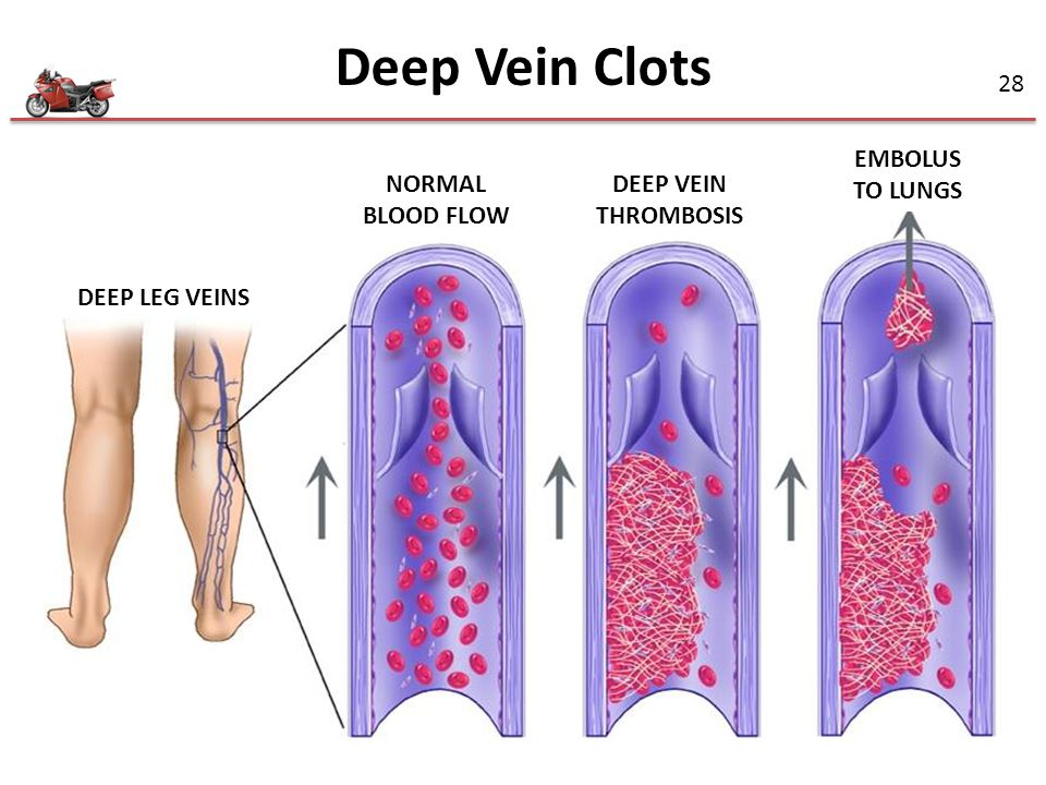 Deep Vein Clots EMBOLUS TO LUNGS NORMAL BLOOD FLOW DEEP VEIN