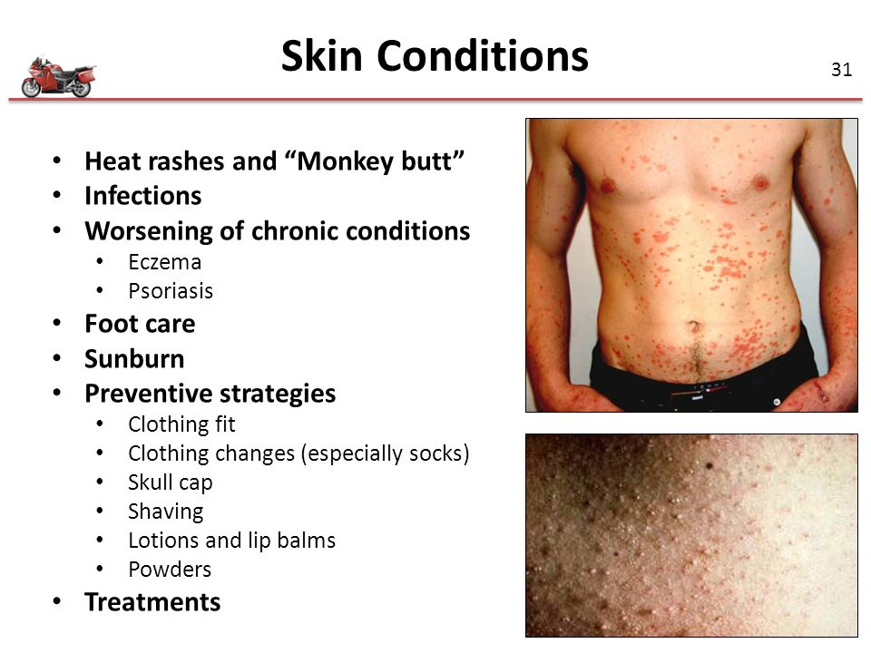 Skin Conditions Heat rashes and Monkey butt Infections