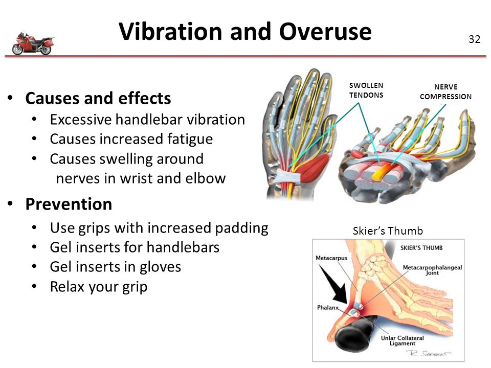 Vibration and Overuse Causes and effects Prevention