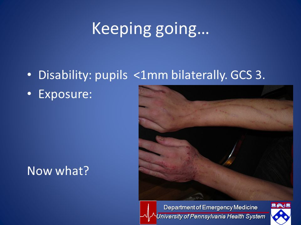 Keeping going… Disability: pupils <1mm bilaterally. GCS 3.