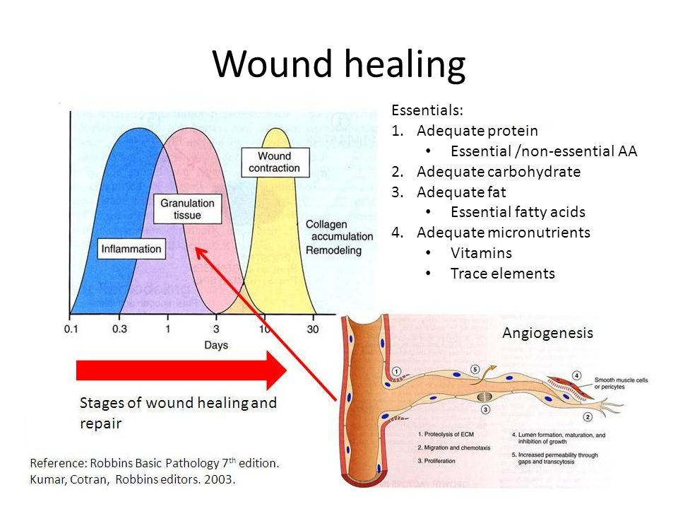 Wound healing Essentials: Adequate protein Essential /non-essential AA