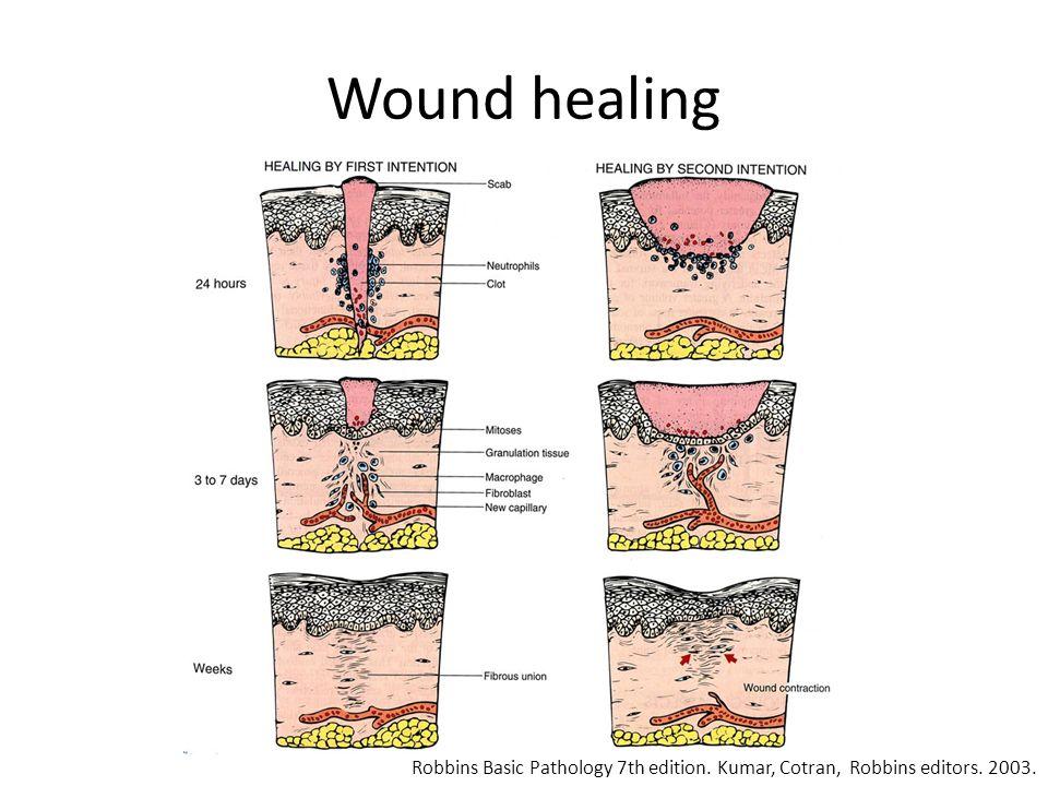 Wound healing Robbins Basic Pathology 7th edition. Kumar, Cotran, Robbins editors. 2003.
