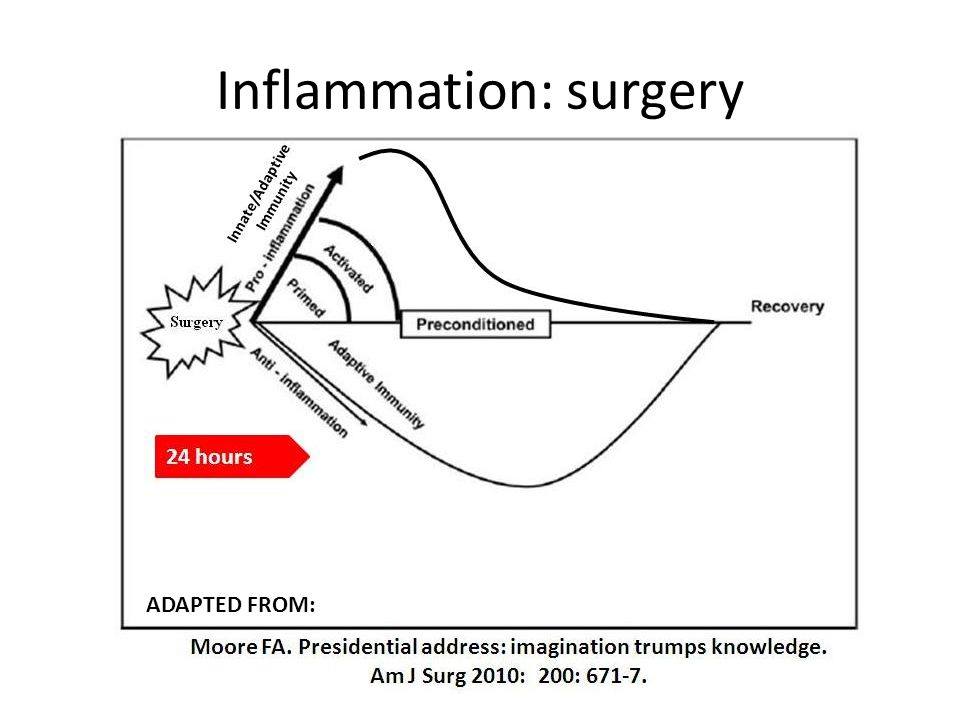 Inflammation: surgery