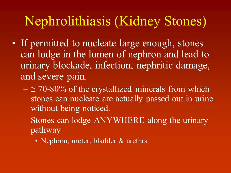 Nephrolithiasis (Kidney Stones)