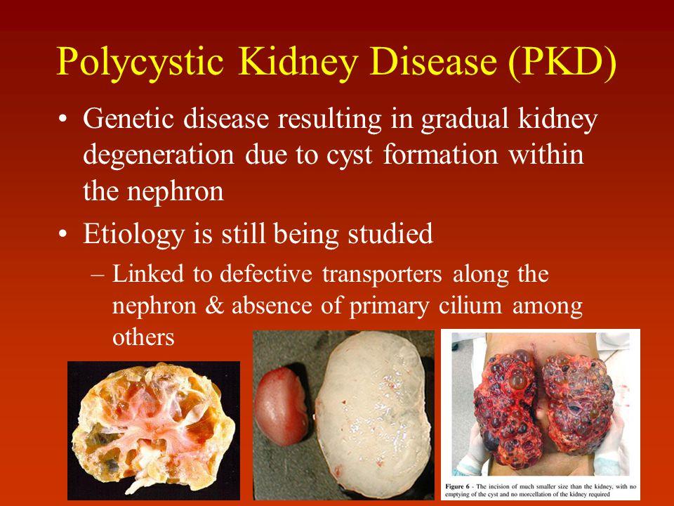 Polycystic Kidney Disease (PKD)