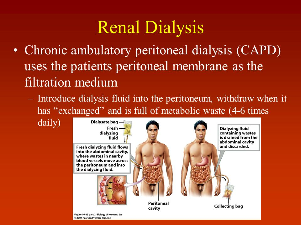 Renal Dialysis Chronic ambulatory peritoneal dialysis (CAPD) uses the patients peritoneal membrane as the filtration medium.