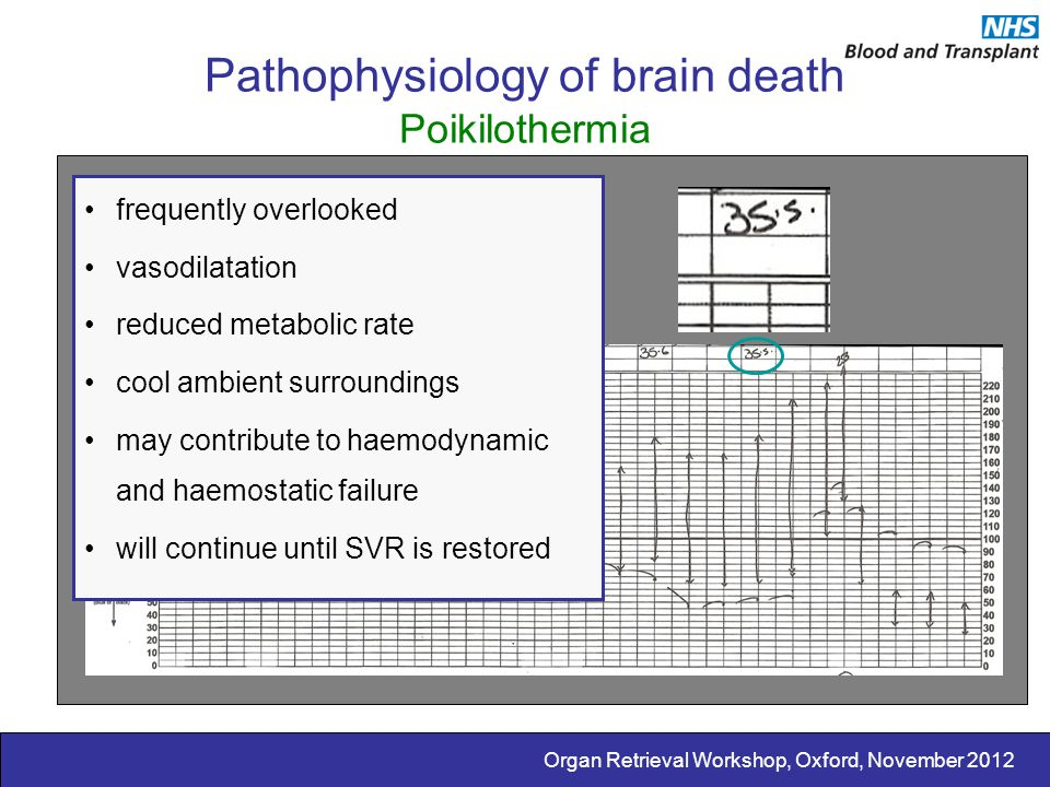Pathophysiology of brain death