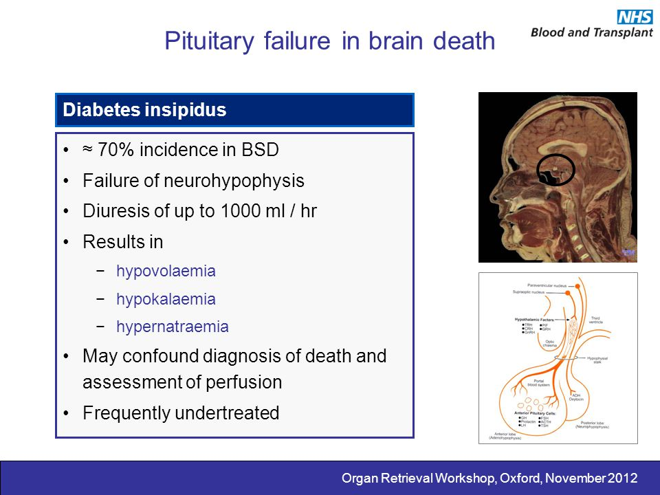 Pituitary failure in brain death
