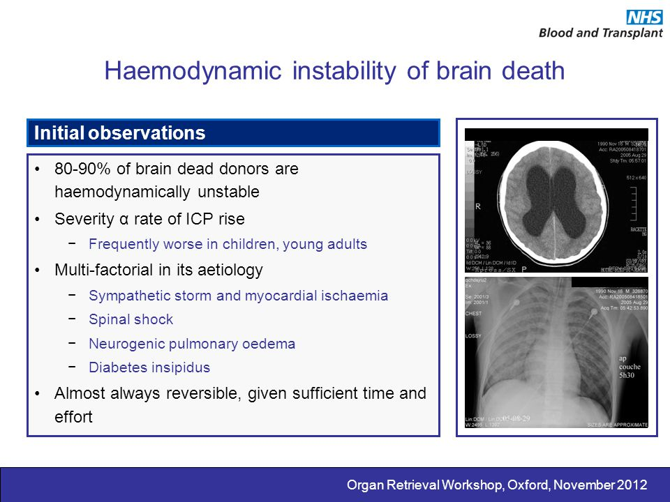 Haemodynamic instability of brain death