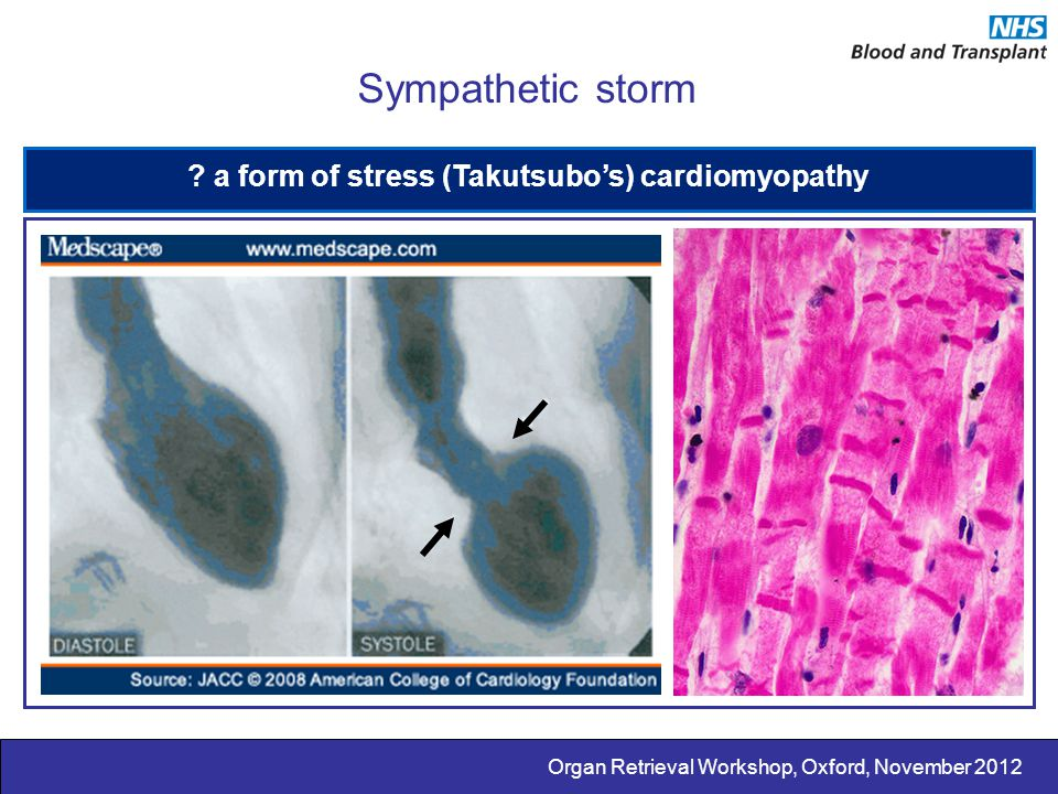 a form of stress (Takutsubo's) cardiomyopathy