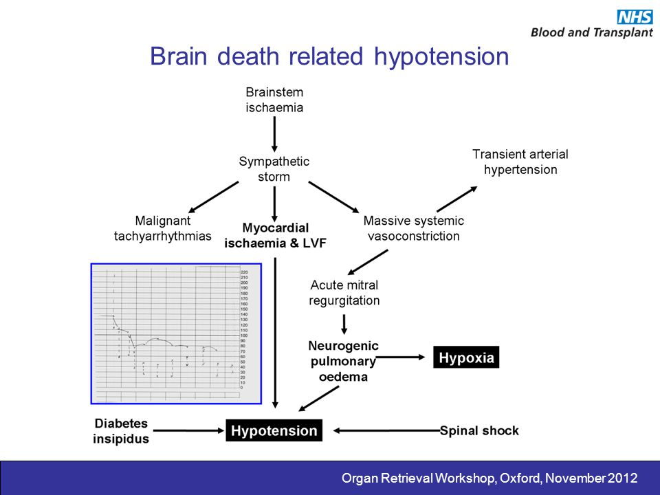 Brain death related hypotension