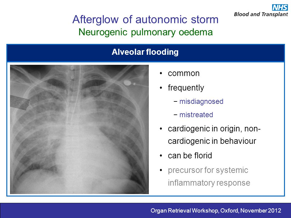 Afterglow of autonomic storm Neurogenic pulmonary oedema