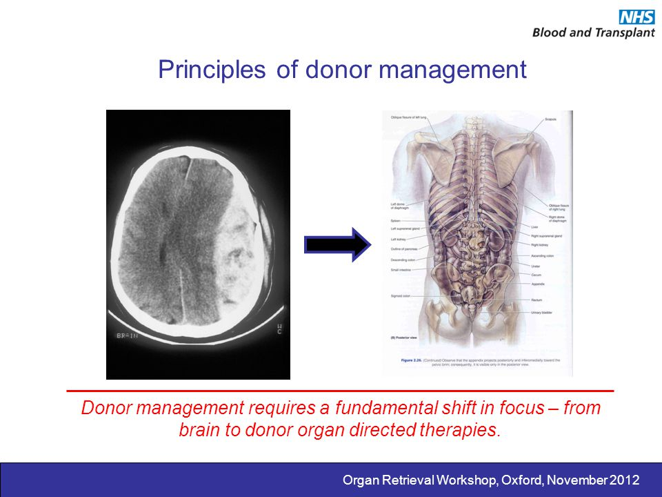 Principles of donor management